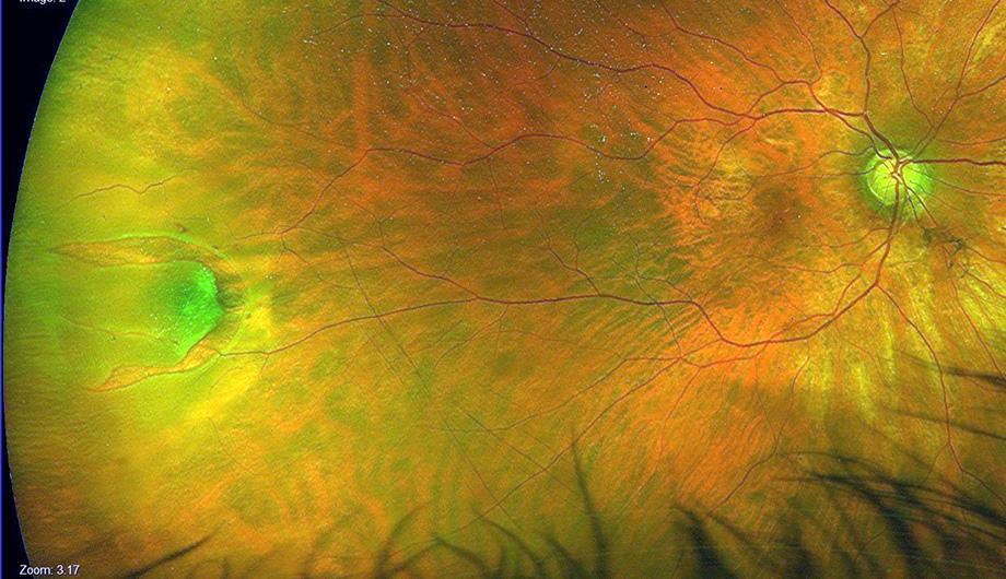 Rottura retinica PRE-trattamento Argon Laser